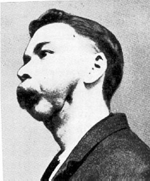 Match factory worker with phossy jaw
