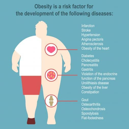 The risk factors of obesity