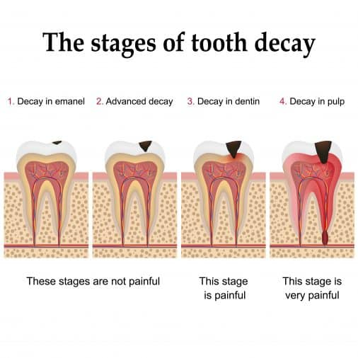 Tooth decay is the result of a chemical reaction