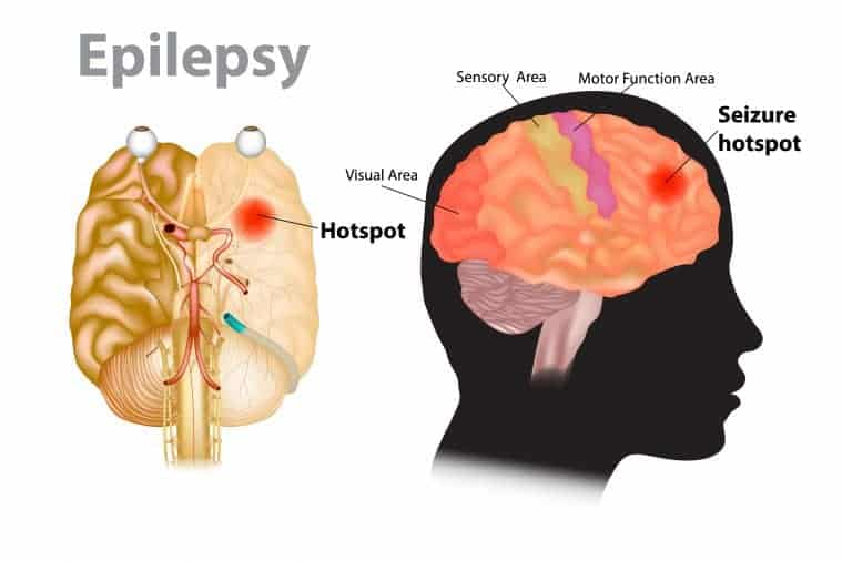 Medical illustration of a brain with epilepsy